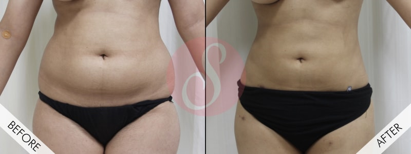 liposuction surgery in gurgaon