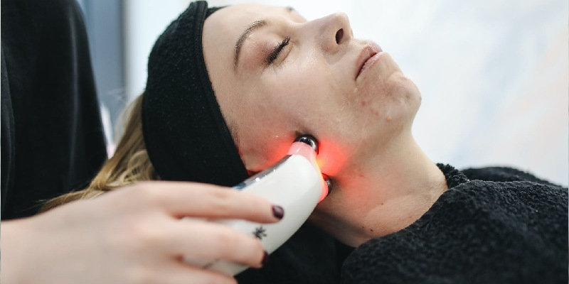 Laser Acne Treatment in Gurgaon
