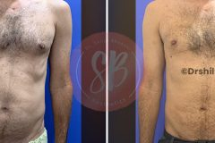 Abdomen,-Flank-and-Gynecomastia-treatment-with-Liposuction1